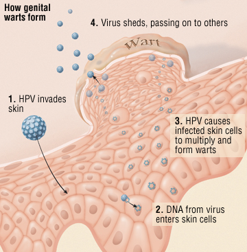 What is HPV and Why HPV Vaccination For Girls?